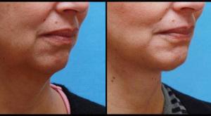 Chin Enhancement & Neck Lift