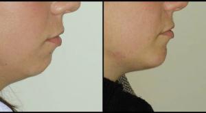 Chin Enhancement & Neck Liposuction