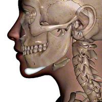 Chin Implant Jaw Bone Diagram