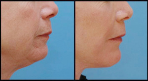 Chin Implant & Facelift
