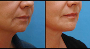 Mentoplasty & Neck Lift