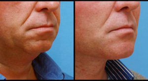 Chin Augmentation, Implant & Necklift