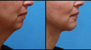 Chin Enhancement & Neck Lift