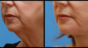 Mentoplasty & Facial Rejuvenation