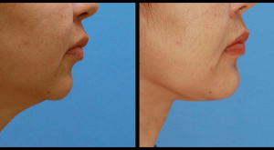 Chin Implant & Necklift