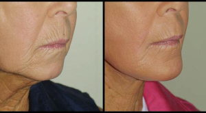 Facelift & Chin Augmentation
