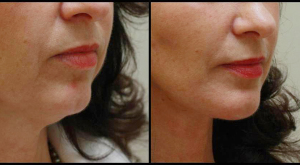 Chin Implant & Neck Lift