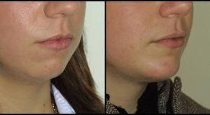 Chin Enhancement & Neck Liposuction